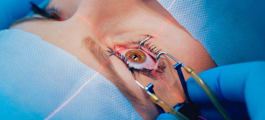 Chirurgie des yeux : choisir un bon spécialiste en ligne
