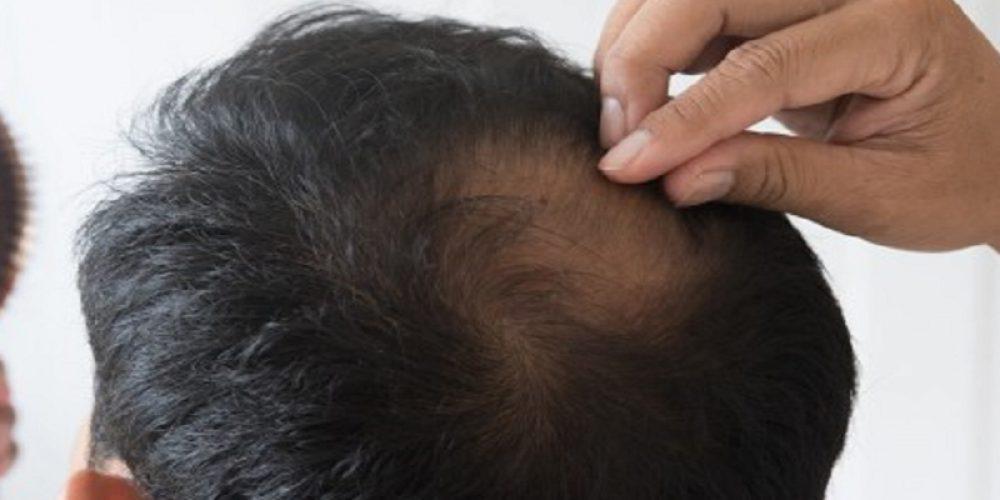 Comment lutter efficacement contre la chute de cheveux chez l'homme ?