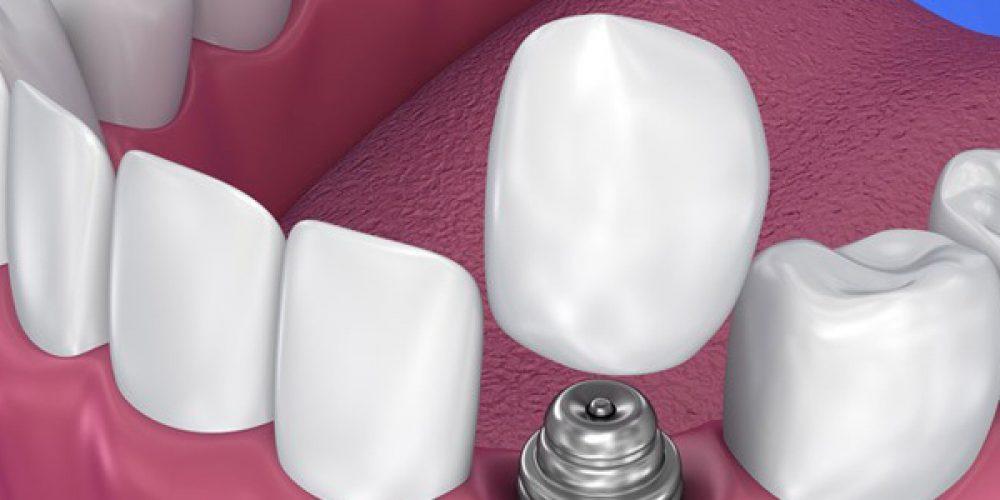 Trouver une bonne adresse à Saint-Denis pour se faire poser un implant dentaire