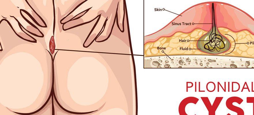 Comment guérir un kyste pilonidal ?