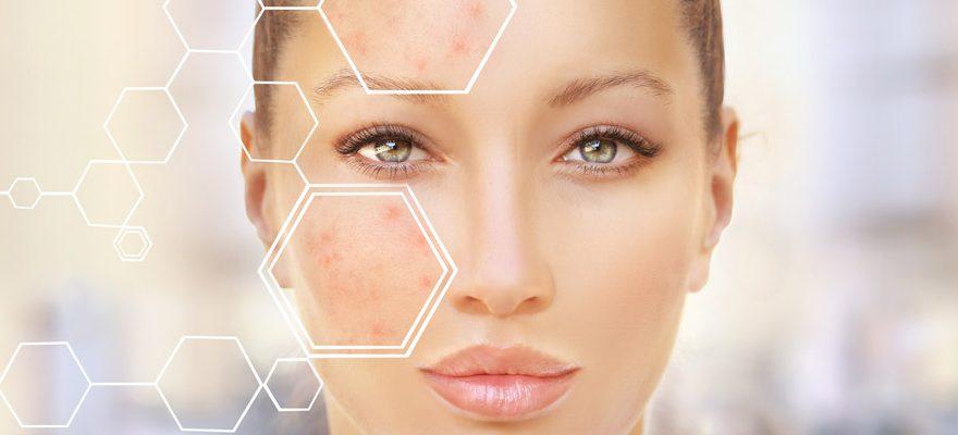 Qu'est-ce que le peeling dermatologique ?