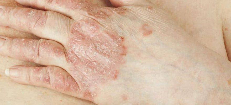 Traiter efficacement le psoriasis des mains et des pieds